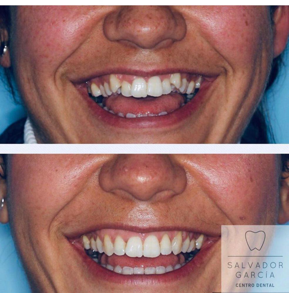 tratamiento ortodoncia salvador garcia